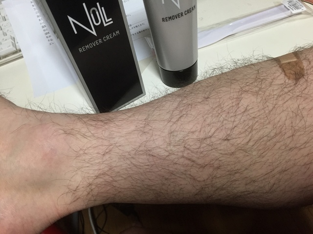 ビフォー脚の毛
